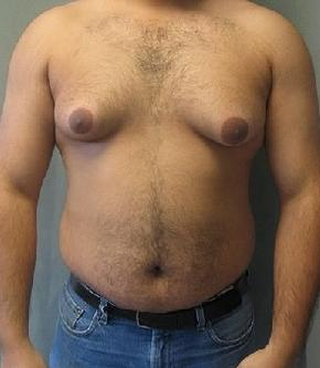 man boobs or gynecomastia